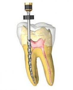 endodont pitesti