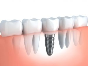 implant dentar Pitesti