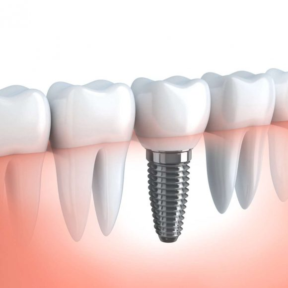 Implantologia – implant dentar